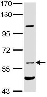 Western blot - Natriuretic Peptide Receptor C antibody (ab97389)