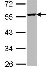Western blot - Ornithine Decarboxylase antibody (ab97395)