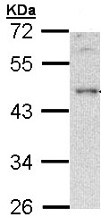 Western blot - BLNK antibody (ab97407)