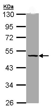 Western blot - Thyroxine Binding Globulin antibody (ab97435)