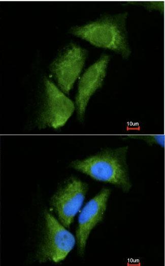 Immunocytochemistry/ Immunofluorescence - DPP3 antibody (ab97437)