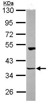 Western blot - HOMER3 antibody (ab97438)