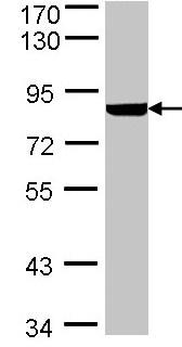 Western blot - PFKL antibody (ab97443)
