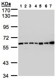 Western blot - C2 antibody (ab97461)