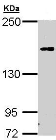 Western blot - C5 antibody (ab97465)