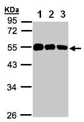 Western blot - Calsequestrin antibody (ab97474)