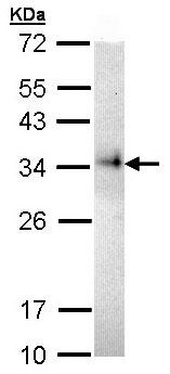 Western blot - CD74 antibody (ab97479)