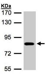 Western blot - Chloride Channel 5 antibody (ab97482)