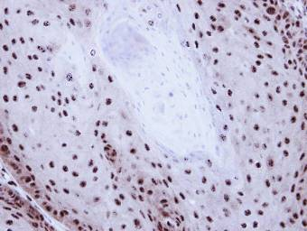 Immunohistochemistry (Formalin/PFA-fixed paraffin-embedded sections) - GABPB2 antibody (ab97489)