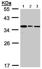 Western blot - BPGM antibody (ab97497)