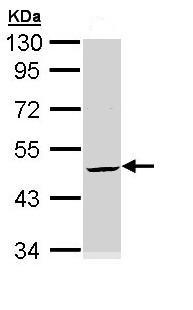 Western blot - Cytokeratin 20 antibody (ab97511)