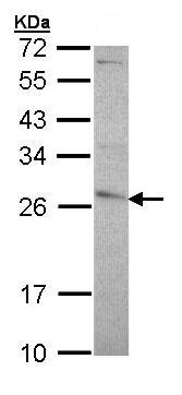 Western blot - GST3 / GST pi antibody (ab97515)