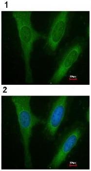 Immunocytochemistry/ Immunofluorescence - BAP31 antibody (ab97536)