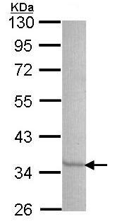 Western blot - SEC61A antibody (ab97537)