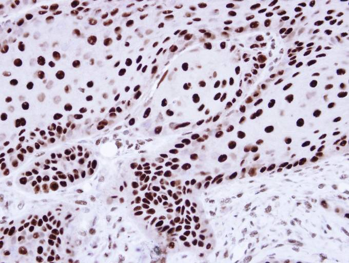 Immunohistochemistry (Formalin/PFA-fixed paraffin-embedded sections) - hnRNP C1 + C2 antibody (ab97541)