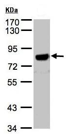 Western blot - beta Amyloid antibody (ab97555)