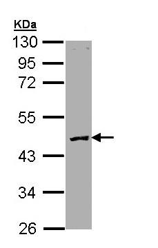 Western blot - Protein C antibody (ab97559)