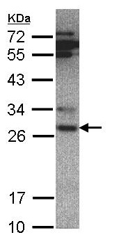 Western blot - Anti-Proteasome subunit alpha type 6 antibody (ab97562)