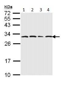 Western blot -  Proteasome subunit alpha type 6 antibody (ab97563)