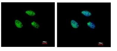 Immunocytochemistry/ Immunofluorescence - Retinoic Acid Receptor gamma antibody (ab97569)