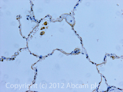 Immunohistochemistry (Formalin/PFA-fixed paraffin-embedded sections) - Anti-Angiotensin II Type 1 Receptor antibody (ab97571)