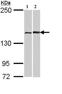 Western blot - FANCA antibody (ab97578)