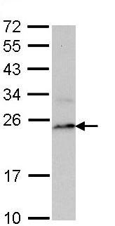 Western blot - Proteasome 20S LMP7 antibody (ab97584)