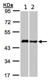 Western blot - Homer (1b+1c) antibody (ab97593)