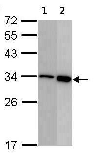 Western blot - RPA32/RPA2 antibody (ab97594)