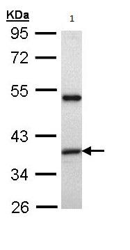 Western blot - ARA9 antibody (ab97639)