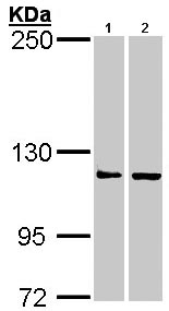Western blot - ADAR1 antibody (ab97640)