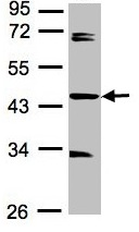 Western blot - SDCCAG3 antibody (ab97666)