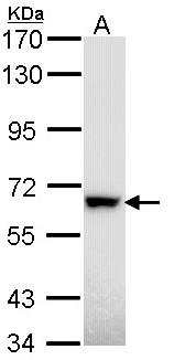 Western blot - RAD18 antibody (ab97670)