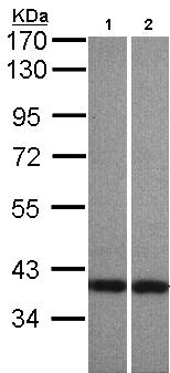 Western blot - Centaurin alpha 1 antibody (ab97690)