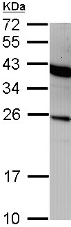 Western blot - Interferon alpha 2 antibody (ab97700)