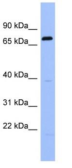 Western blot - RGS9 antibody (ab97702)