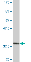 Western blot - Anti-FOLR2 antibody (ab97725)