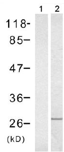 Western blot - Rac1 antibody (ab97732)