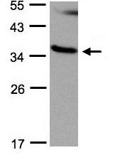 Western blot - RASSF1a antibody (ab97749)