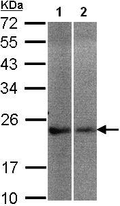 Western blot - Frequenin antibody (ab97754)