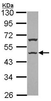 Western blot - ISLR antibody (ab97759)