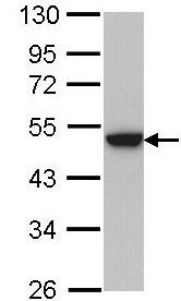 Western blot - KRT31 antibody (ab97763)