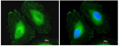 Immunocytochemistry/ Immunofluorescence - CRYBA4 antibody (ab97771)