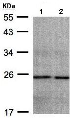 Western blot - NDUFB9 antibody (ab97781)