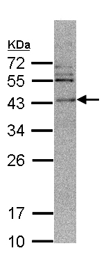 Western blot - CAMK1D antibody (ab97802)