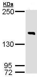 Western blot - DIP2 homolog B antibody (ab97804)