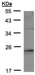 Western blot - RAP2C antibody (ab97805)