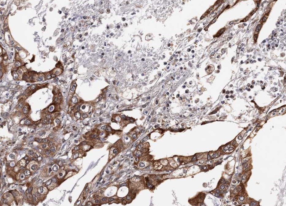 Immunohistochemistry (Formalin/PFA-fixed paraffin-embedded sections) - HPSE2 antibody (ab97807)