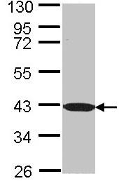 Western blot - BEN Domain Containing Protein 5 antibody (ab97809)