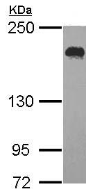 Western blot - USP47 antibody (ab97835)